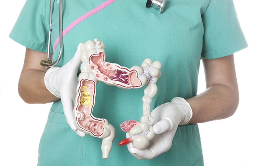 Is Colon Cleansing Safe?